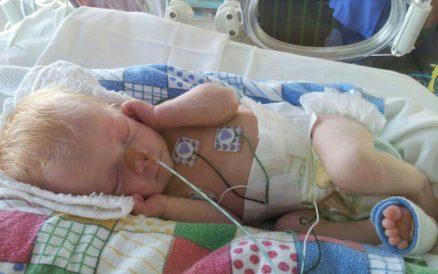 Prematurity - Our Story